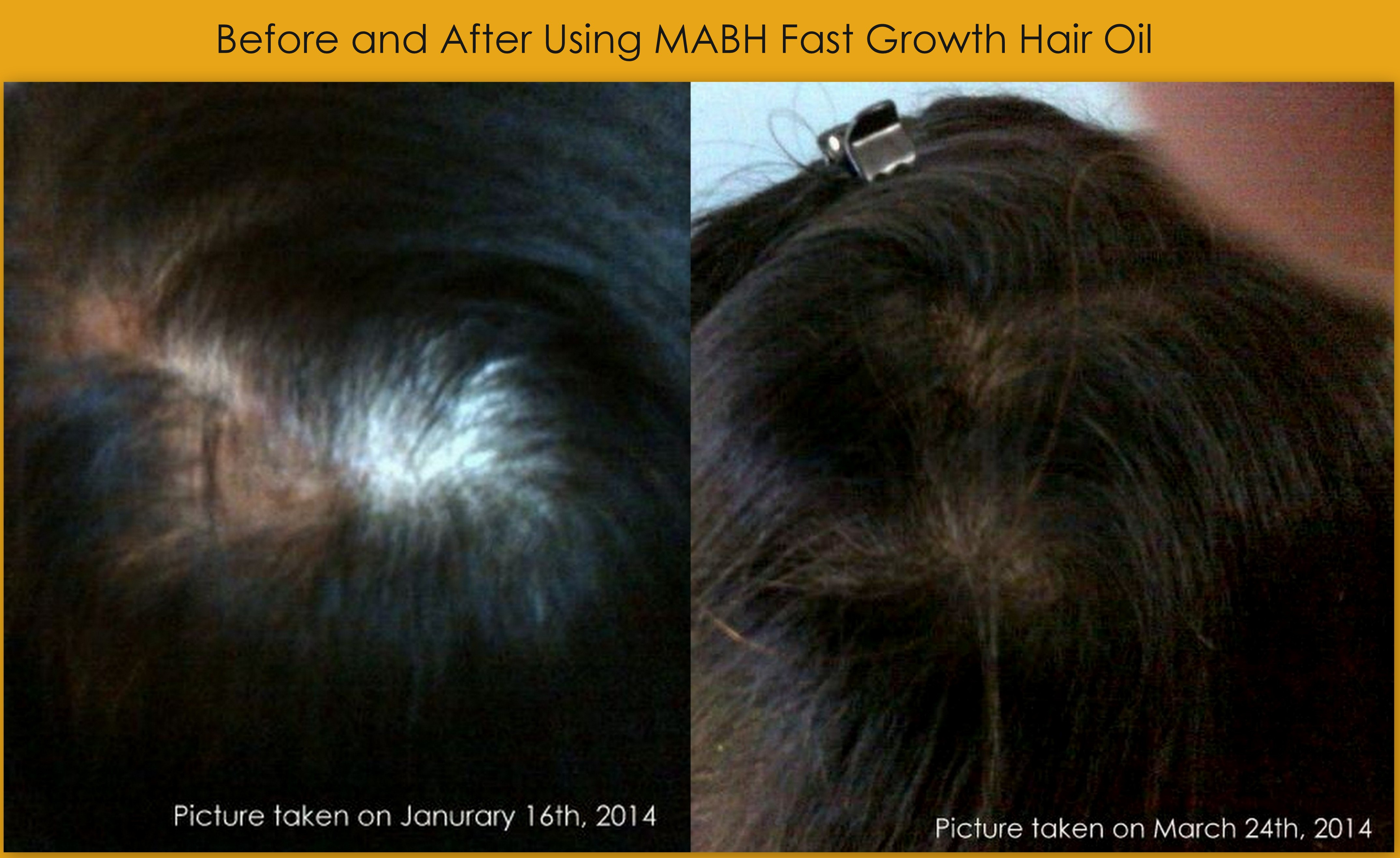 Before After Pictures Anahita S Experience With Mabh Fast Growth Hair Oil